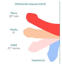 disfuncion-sexual.jpg